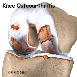 Osteoarthritis Knee Singapore