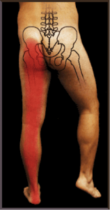 Sciatica Treatment Singapore - Singapore Sports Clinic