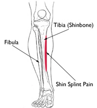 Shin Splints Injury
