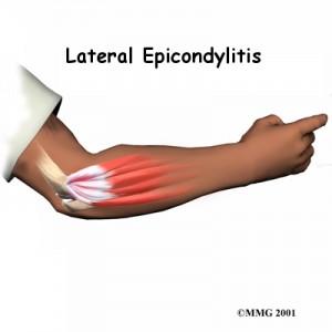 Tennis Elbow Doctor Singapore