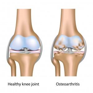 Knee Osteoarthritis Singapore