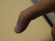 finger insertion