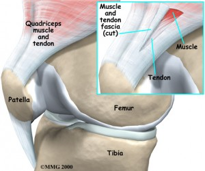 Patellar Tendonitis Treatment Singapore Sports Clinic
