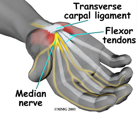Carpal Tunnel Syndrome Specialist Singapore Sports Clinic