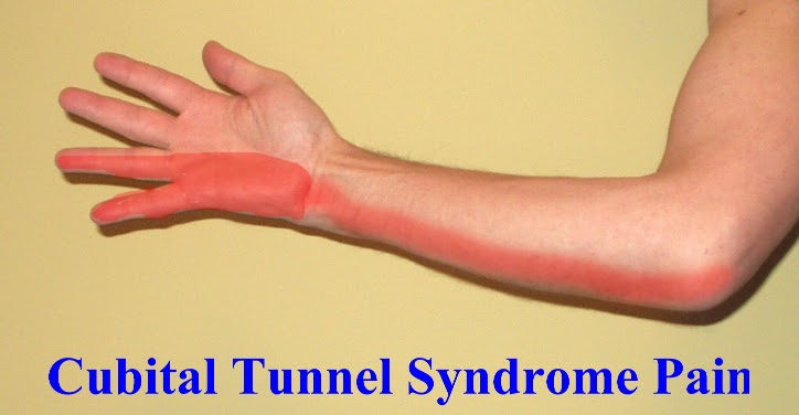 Nerve Pain: Ulnar Nerve Pain Ring Finger