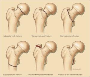Hip Fracture Specialist Singapore