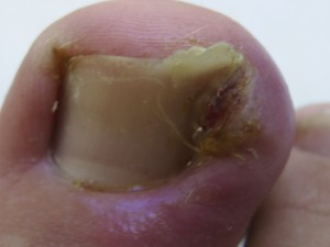 The nail is seen to be growing into the skin