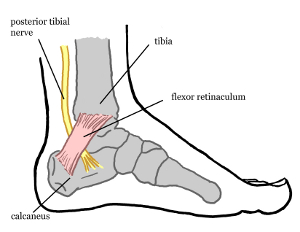Tarsal Tunnel Syndrome Treatment Singapore