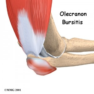 Olecranon Bursitis doctor Singapore
