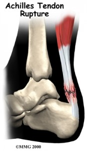 Achilles Tendon Rupture Treatment Singapore Sports Clinic
