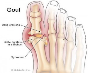 Gout of Big Toe