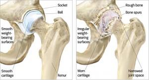 Osteoarthritis Hip Singapore