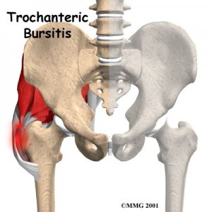 Trochanteric Bursitis Treatment Singapore
