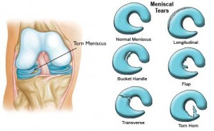 Types of Meniscus Torn