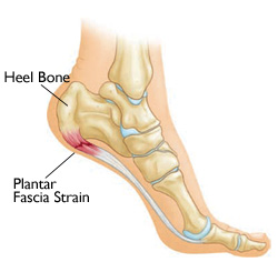 Heel Pain – Plantar Fasciitis Treatment Singapore