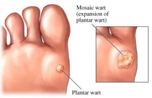 Plantar warts doctor Singapore