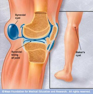 Baker's Cyst (Popliteal Cyst) Specialist Clinic
