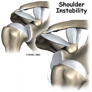 Shoulder Instability Treatment Singapore