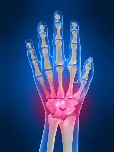 Wrist Pain, Wrist Injury, wrist injuries, injured wrist, numbness hand, wrist sore, wrist painful while bending, wrist specialist singapore
