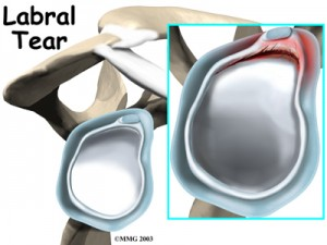Shoulder Labral Tear