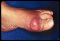 Gout Attack at Great Toe