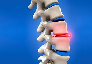 Back Pain due to Slipped Disc