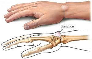 Ganglion Cysts