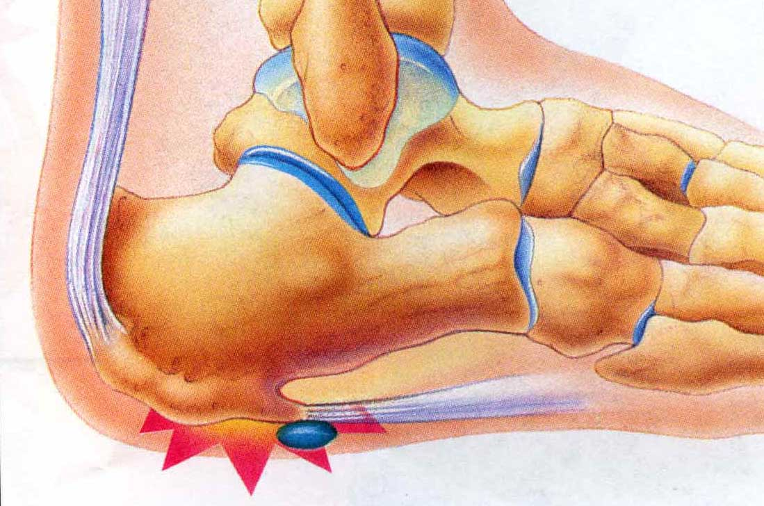 heel pain after walking
