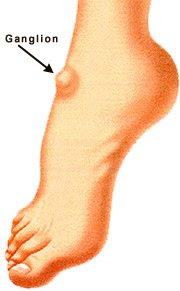 Ganglion At Ankle Is Called Ganglion Cyst