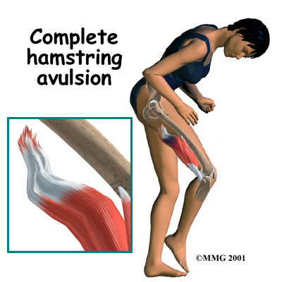 Hamstring Injury: What You Need To Know About Hamstring Injury