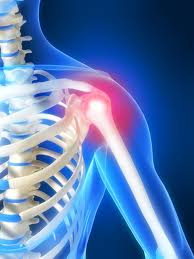 Shoulder Instability, shoulder injury, shoulder injuries, shoulder pain, injured shoulder, shoulder dislocated, shoulder dislocation, shoulders pain, shoulder specialist