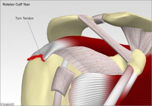 Rotator Cuff Tear Treatment Singapore