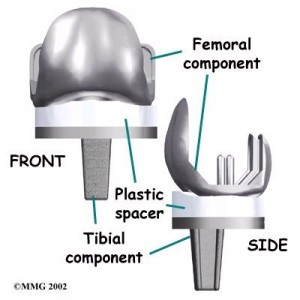 Knee Joint Replacement
