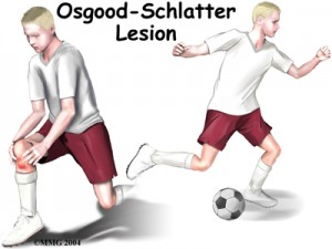 Osgood Schlatter