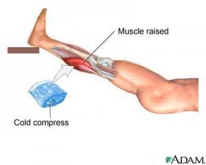 Treatment for Muscle Strain - Leg Strain