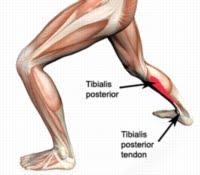 Posterior Tibial Neuralgia - Tarsal Tunnel Syndrome