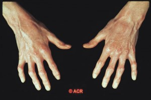 Scleroderma (Systemic Sclerosis)