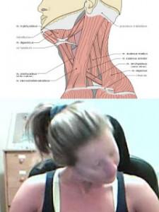 Spasmodic Torticollis - Pain & Stiff Neck Muscles