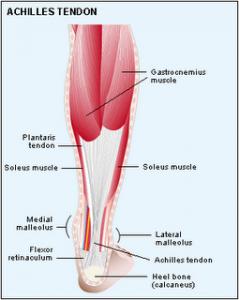 Achilles Tendinitis: Pain At Achilles Area