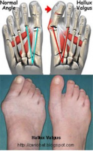 Bunion (Hallux Valgus) - Foot Disorders In Big Toe