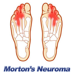 Morton Neuroma: Pain In The Mid Foot