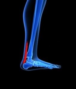 Achilles Tendinitis- Achilles Tendon Injury, Achilles Tendinitis Treatment, Achilles Tendinitis Preventions