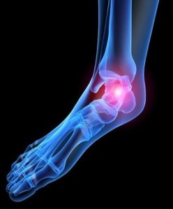 Plantar Fasciitis: Heel Pain Treatment, heel pain, heel spurs, heel pains, heel specialist, plantar fasciitis