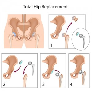 Hip Replacements, Treatments for hip problems, hip replacement for hip osteoarthritis, hip pain specialist, hip injury, total hip replacement, partial hip replacement, severe hip osteoarthritis treatment, vascular necrosis hip replacement