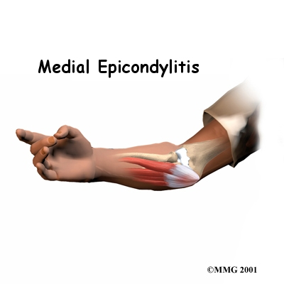 Medial Epicondylitis (Golfer's Elbow), Elbow Injuries, Elbow Injury, Elbow Pain