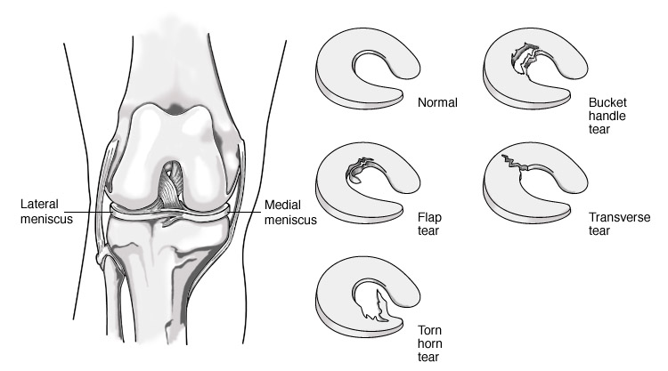 Knee Injuries - Meniscus Injury