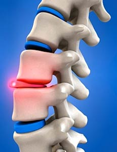 Spine Decompression Surgery, Spinal decompression surgery, spinal stenosis, spine stenosis, spinal pain, spine specialist, spinal specialist, spinal nerve pain