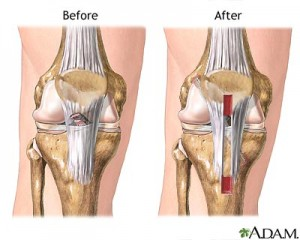 Operative Procedure for Anterior Cruciate Ligament (ACL) Injury , ACL Reconstruction, ACL surgery