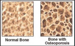 What Causes Osteoporosis?, brittle bone, osteoporosis treatment, osteoporosis check up
