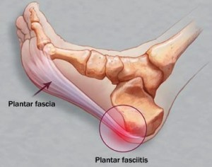 Plantar Fasciitis: Often Feel Heel Pain In the Morning?